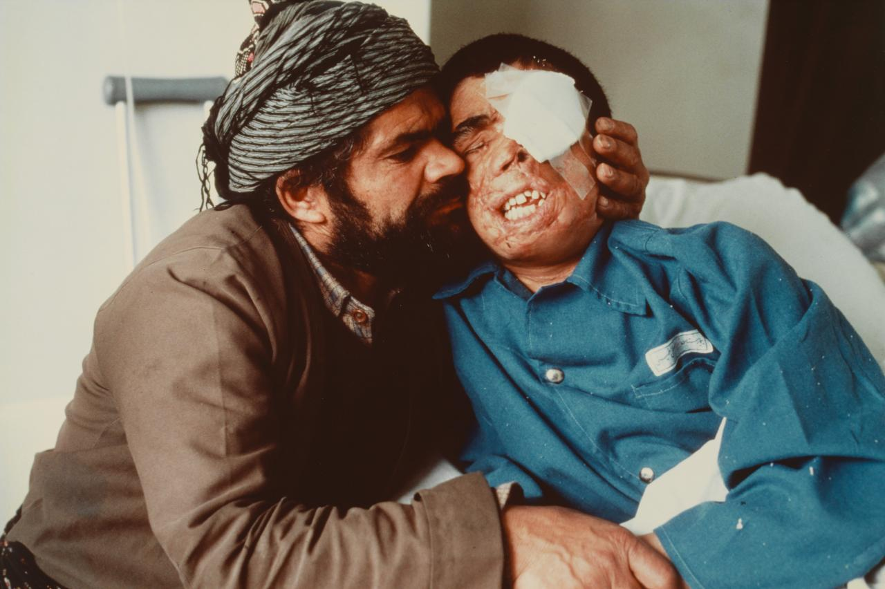 A Kurdish shepherd hugs his fourteen year old blind son who had stepped on an Iranian mine. The father, who sold most of his property to bring his son to Tehran, offered his eyes but the boy was too badly injured for a transplant