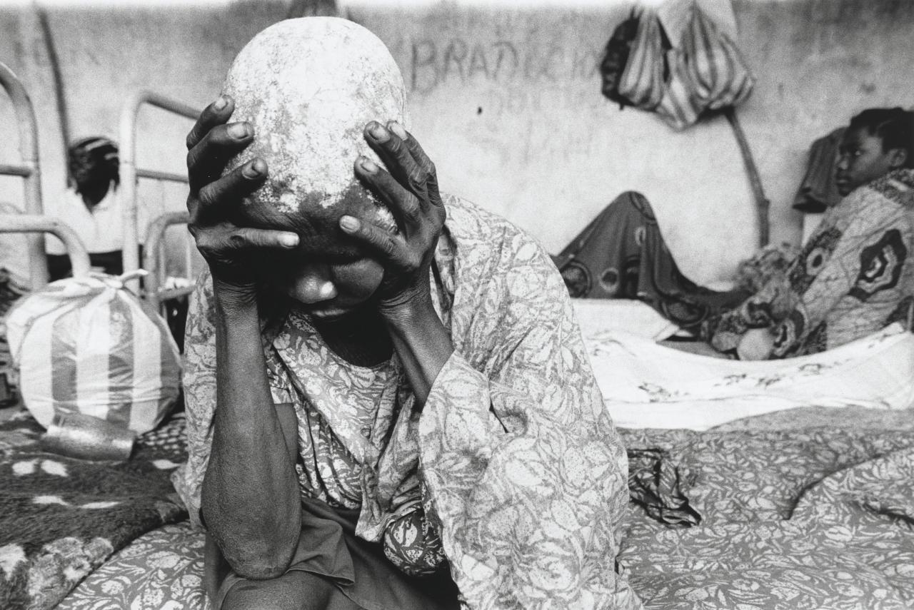 This despairing woman, an inmate at the asylum, has had her head shaved and coated with Papa Kitoko's special herbal potion